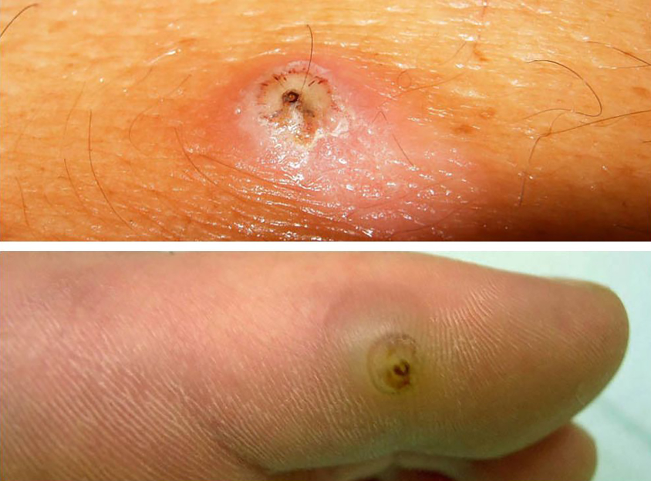 Sand Fleas In Vietnam Who They Are And Where They Live Bites And Treatments